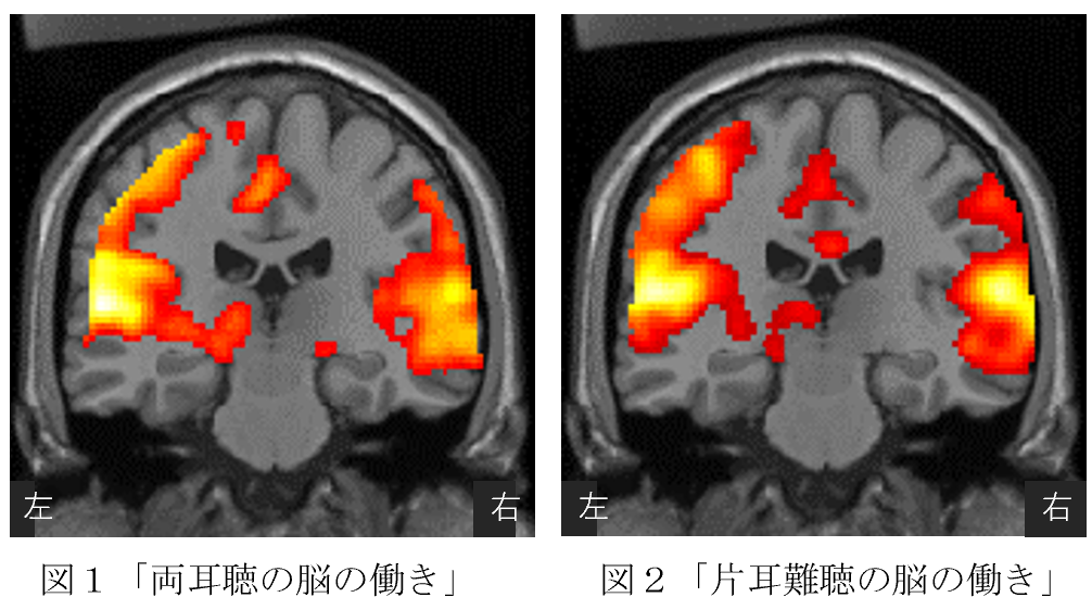 MRI撮影結果