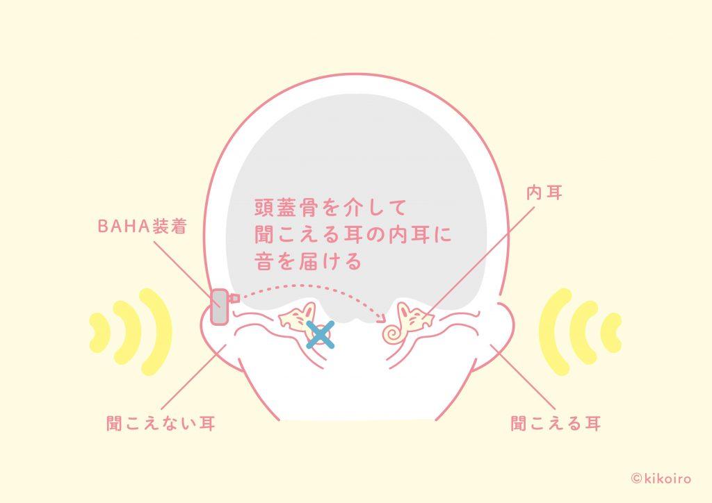 片耳難聴へのBAHAの埋め込みイメージ
