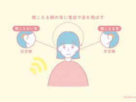 クロス補聴器の仕組みイメージ