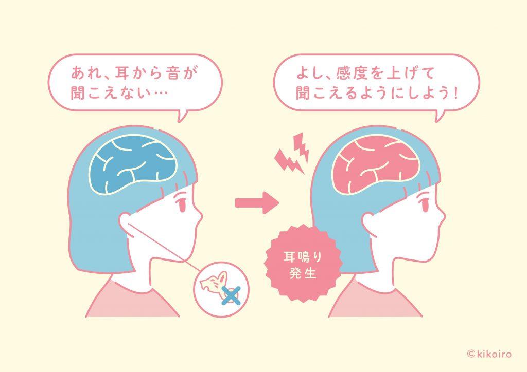 耳鳴りの発生メカニズムイメージ